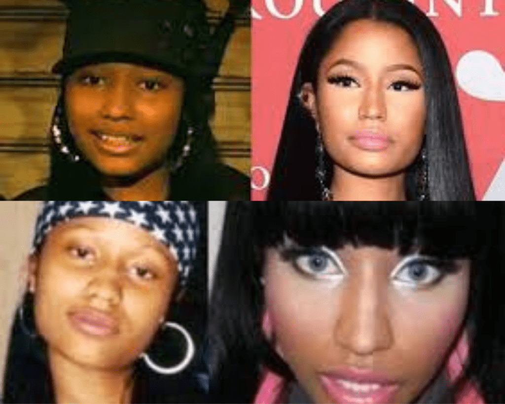 worldcelebritynews.com-nicki-minaj-before-plastic-surgery