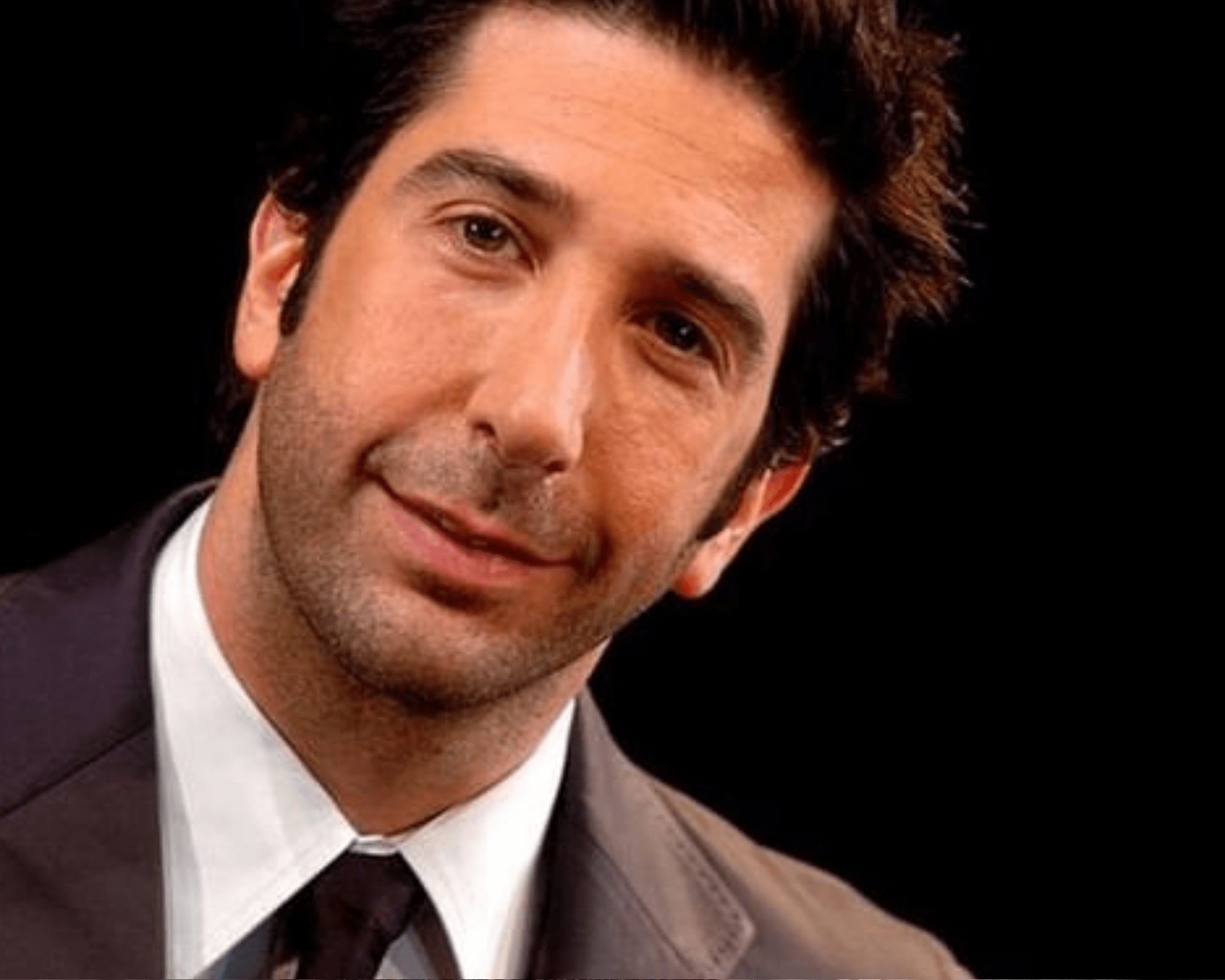 worldcelebritynews-David Schwimmer-plastic-surgery