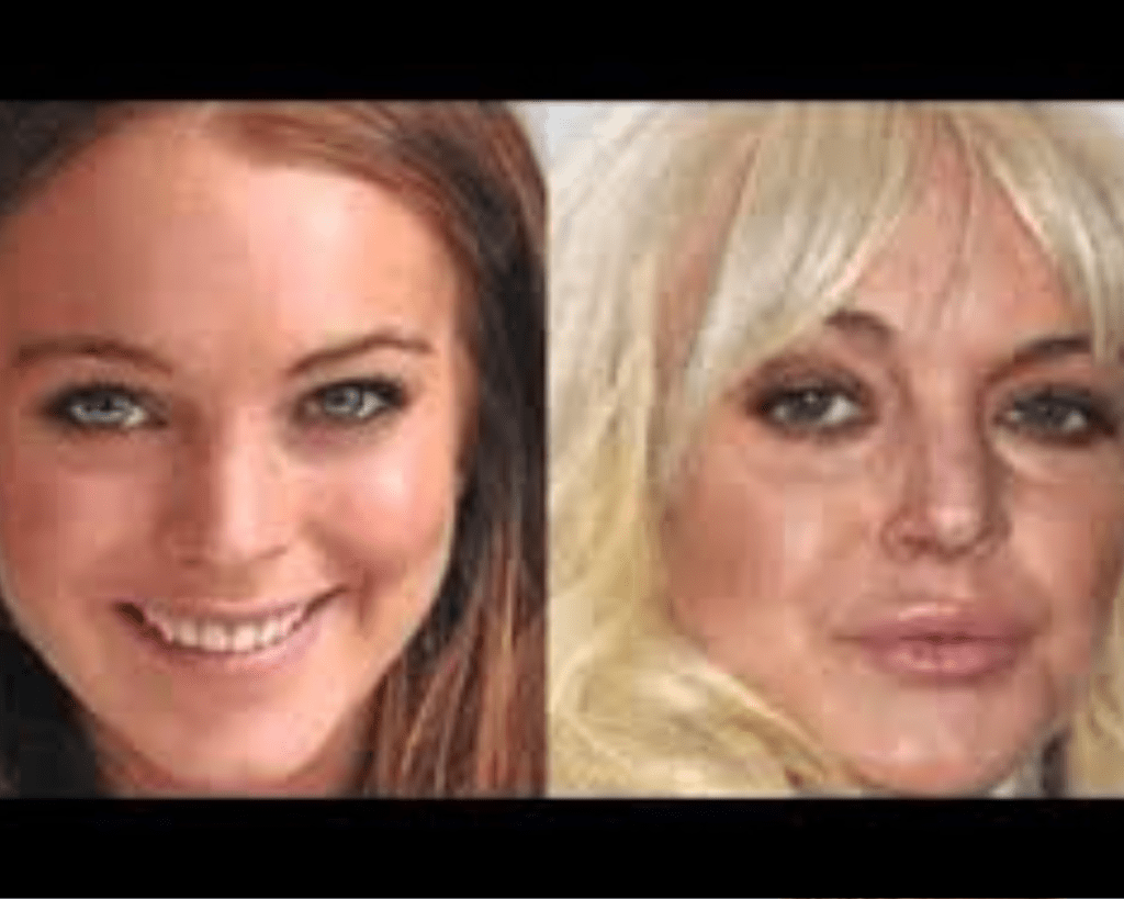 britynews.com-lindsay-lohan-plastic-surgery-after-before