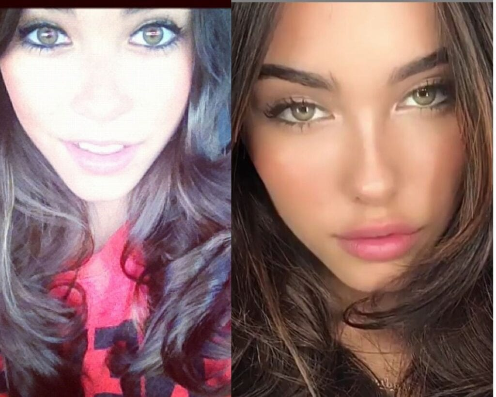 madison-beer-before-and-after-plastic-surgery-worldcelebritynews-2021
