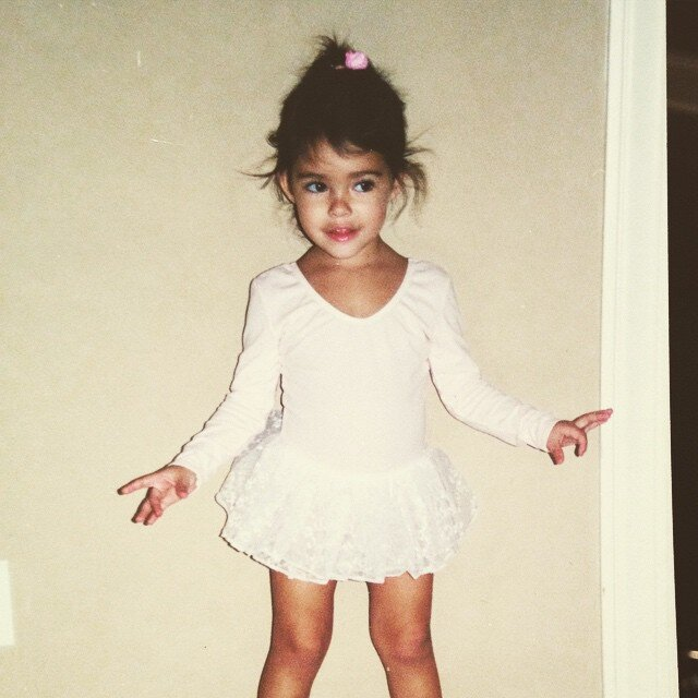 Madison Beer before plastic surgery